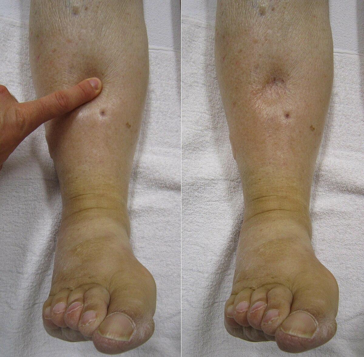 ízületeket tápláló artrózisos gyógyszerek térdízületi kenőcsök artrózissal