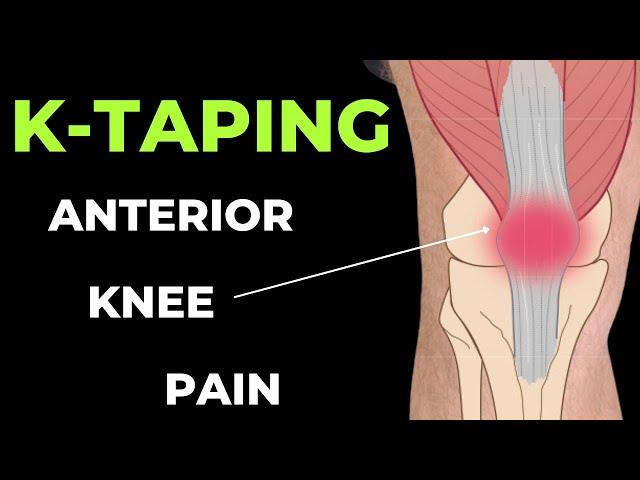 térd ragasztása artrózisban