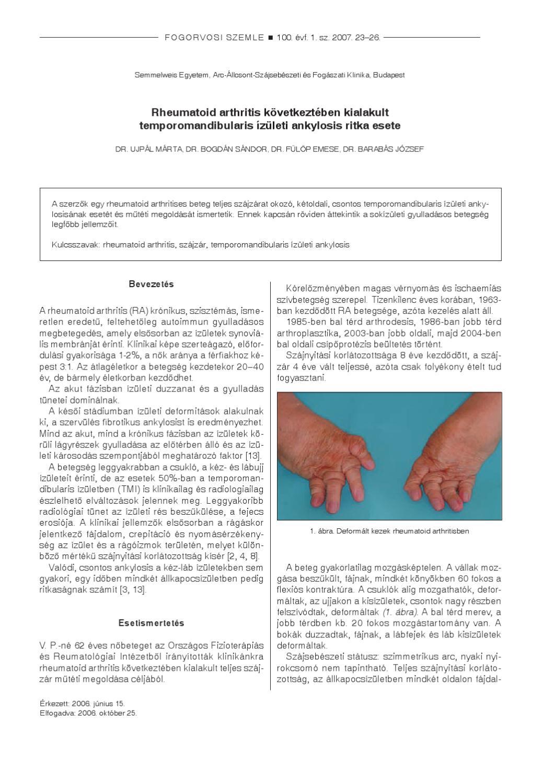 a térd posztraumás ízületi gyulladása túlterheléssel kapcsolatos térdbetegségek