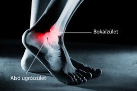 súlyos fájdalom és a bokaízület duzzanata)