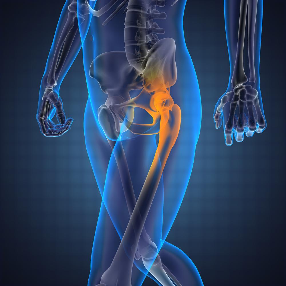 fájdalom húzása a csípőízületekben