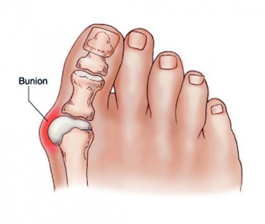 a nagy lábujj ízületi gyulladása okozza)