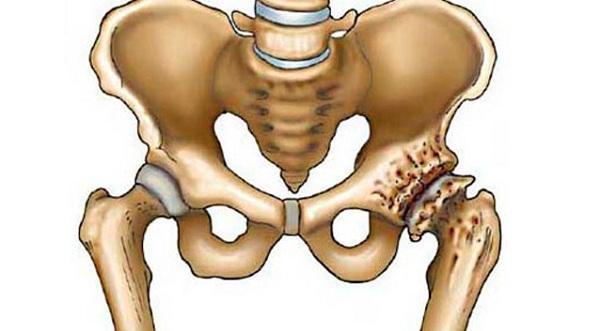 spa kezelés a térd artrózisa