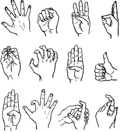 a metacarpophalangealis ízületek deformáló artrózisa)