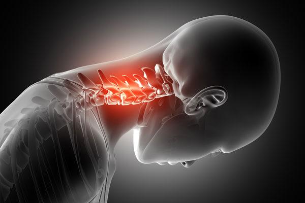 a nyaki csigolyák osteochondroze milyen kenőcsökkel