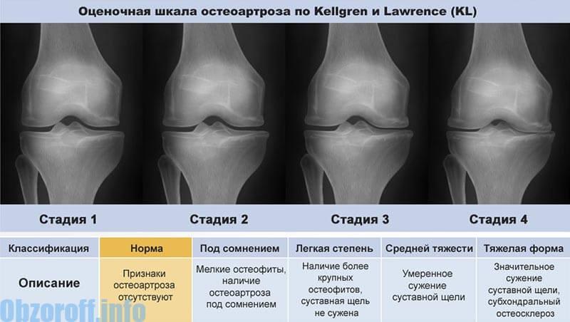artrózis 2. stádiumú kezelés)