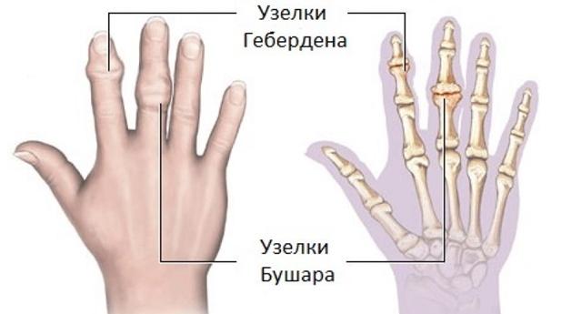 kúpok az ujjak ízületein, mint kezelni)