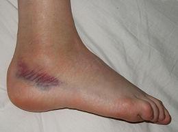 fájdalom a lábak ízületeiben, ha gyorsan jár)