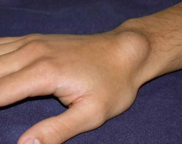 izületi gyulladás kézfejen