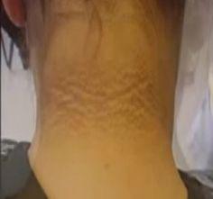 A bordaközi idegzsába és a neuralgiás fájdalom