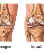 A térdizület ortopédiai betegségei és műtéti kezelésük | schweidelszallo.hu