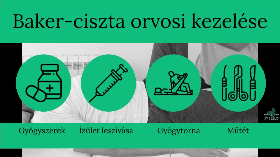 butakov gyógyulási útjának ízületei)