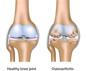 a térd artrózisának 2 stádiuma