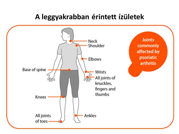 ízületi nyújtási betegség)