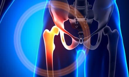 csípőízületi fájdalom ülve