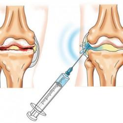 chondroprotektorok az ujjak ízületeinek artrózisához a vállízületek fájdalmainak kezelése