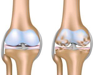 osteoarthrosis artrózis térd gonarthrosis)