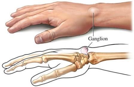 a csontok és a kéz ízületeinek károsodása