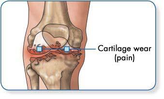 hogyan lokalizálható ízületi fájdalom