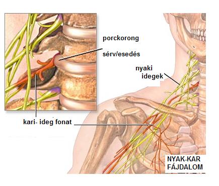 váll-nyaki artrózis kezelés)