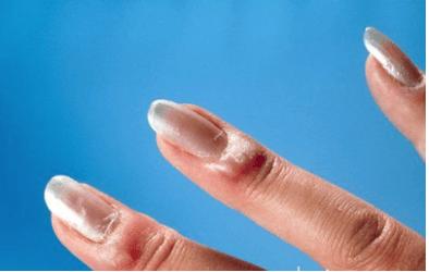 szulfasalazin az ízületek reumatoid artritiszére)