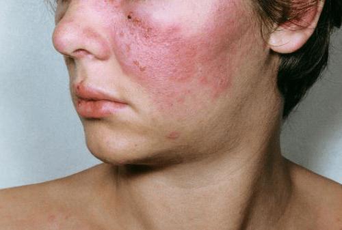 diffúz kötőszöveti betegség patogenezise)