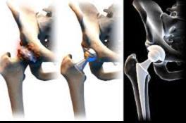 milyen injekciók vannak a csípőízület fájdalmáért