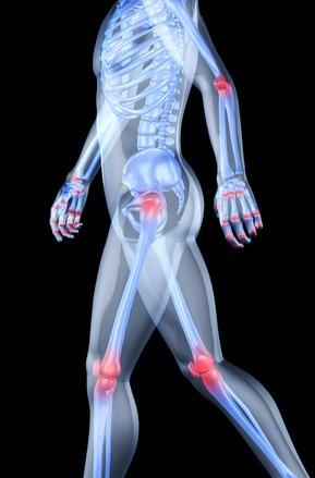egyedülálló az artrózis kezelésében)