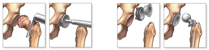 a könyökízületek artrózisa 1 fok