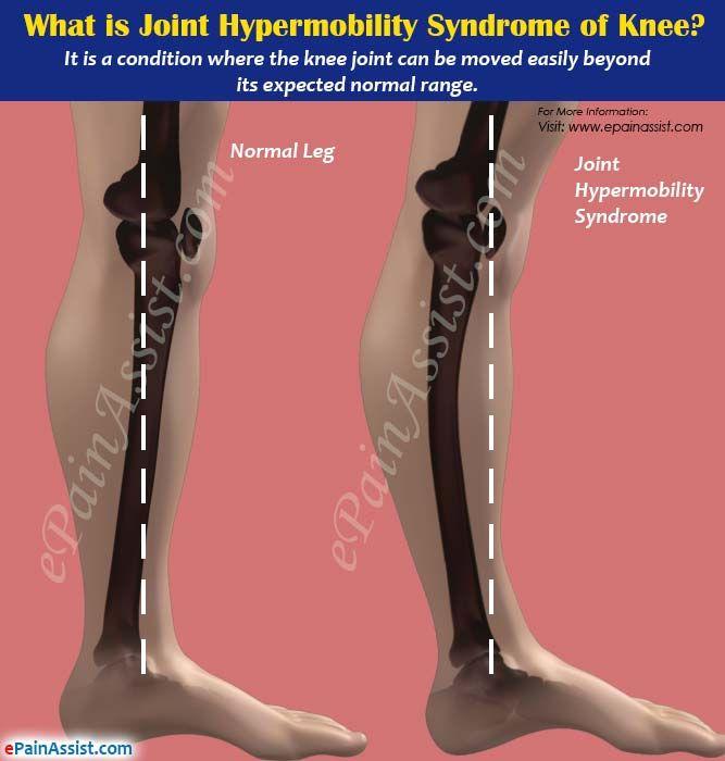 Dr. Diag - Juvenilis Spondylitis ankylopoetica