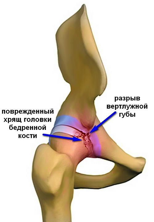 a csípő dysplasia kezelésének modern módszerei