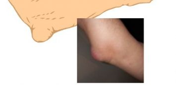 ízületi gyulladás és a könyökízület bursitisz