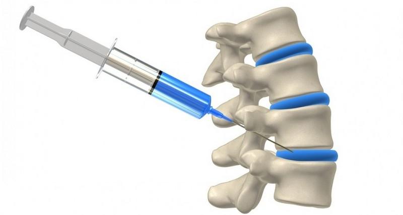 a gerinc lumbosacrális kenőcsének osteochondrosis kezelése