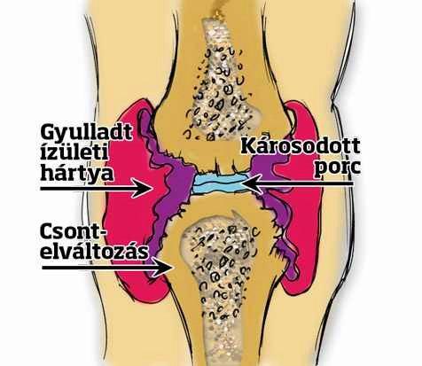 térdízületi ízületi gyulladás