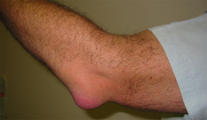 a könyökízület gyulladásának tünetei