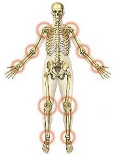 izületi gyulladás és ízületi gyulladás kezelése