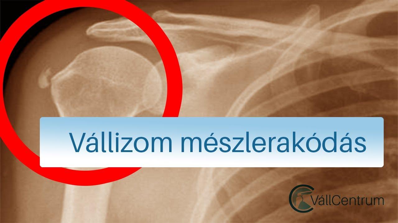 a vállízület polyosteoarthrosis kezelése
