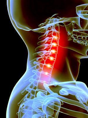 nyaki gerinc tünetei kezelésének nemcrovertebralis artrózisa