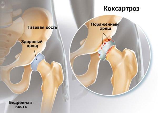 a térd radiológiai képének deformáló artrózisa)