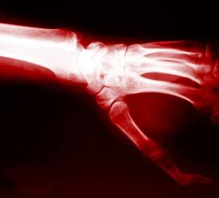 rheumatoid arthritis ízületi röntgenképe