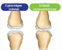 a térd artrózisos térdfájdalom duzzanat