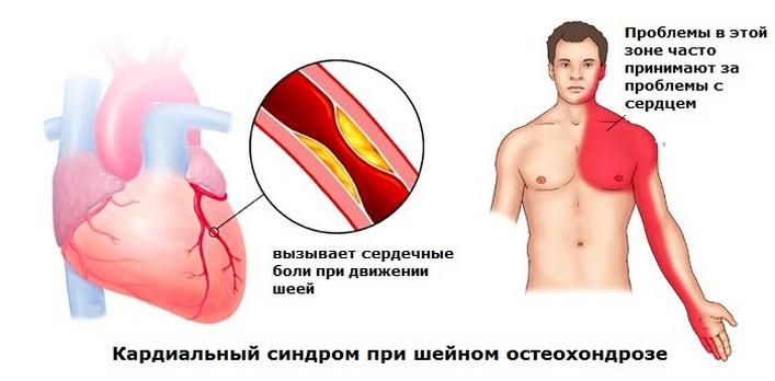 méhnyakcsonti osteochondrosis, mint a kenőcsök)