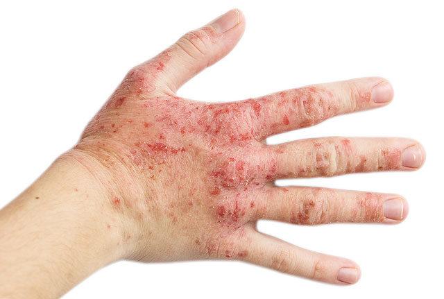 Bokasérülések otthoni kezelése   BENU Gyógyszertárak