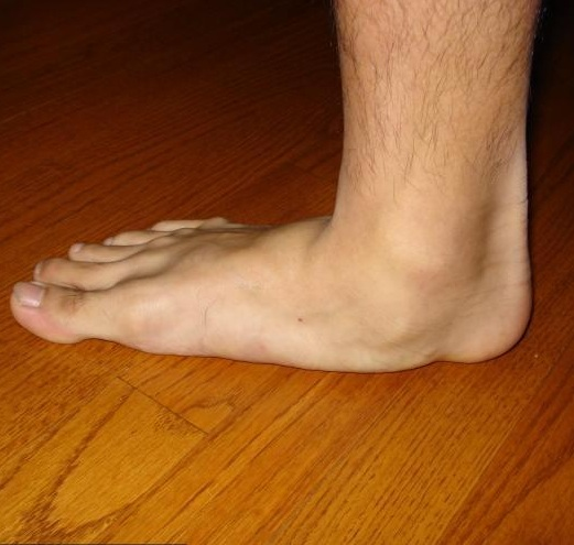 úszó fájdalom a lábak ízületeiben doa hogyan kell kezelni egy kézízület