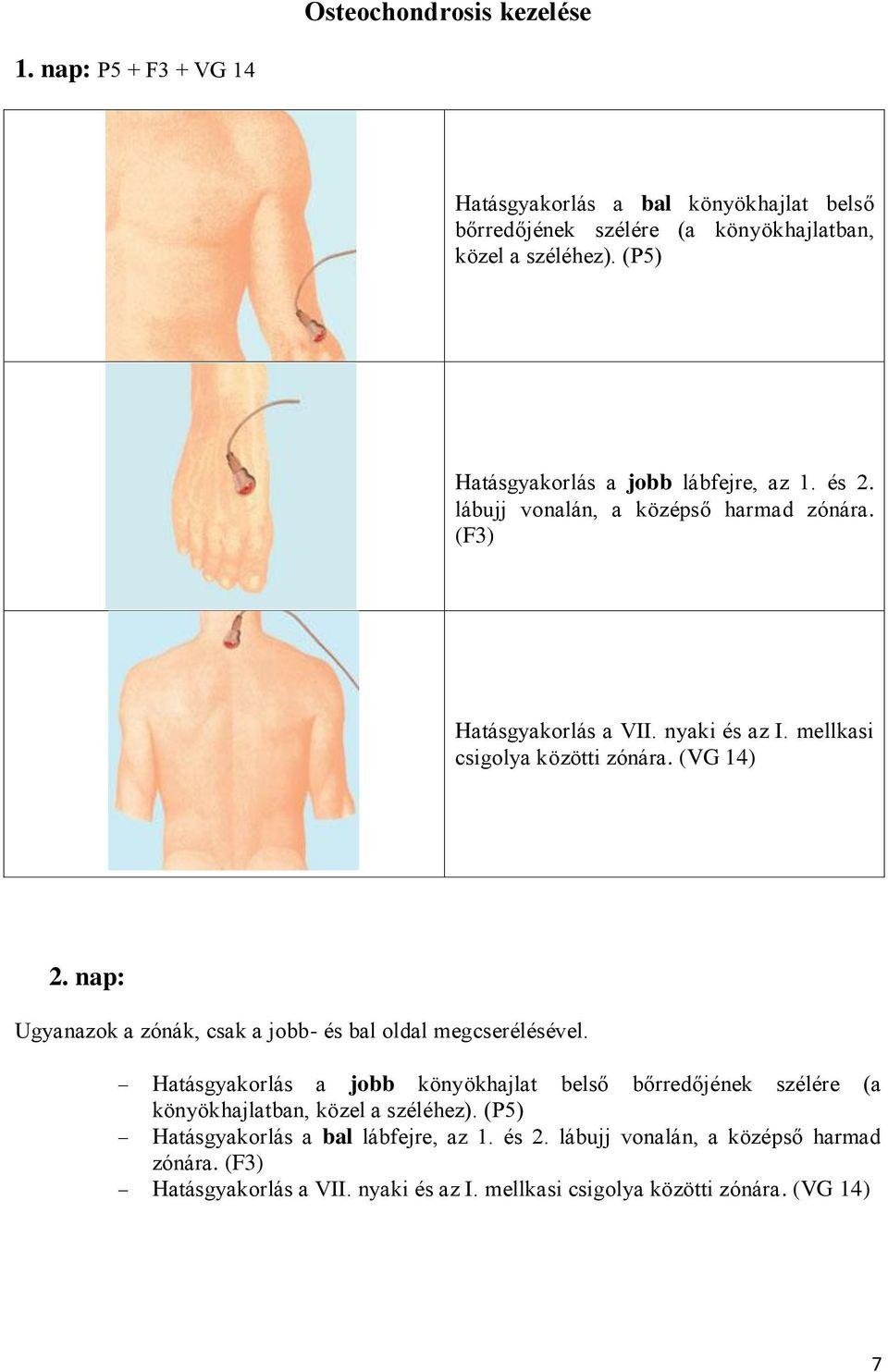 nyaki osteochondrozis és artrózis kezelés)