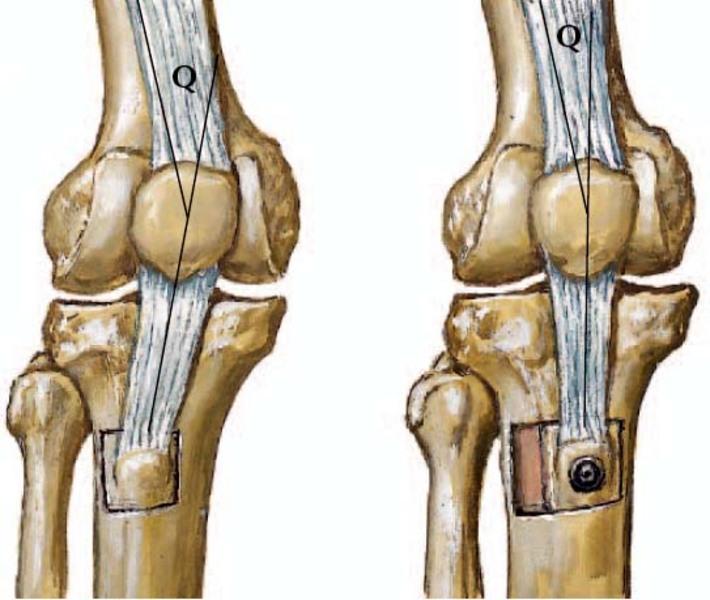 Mi az osteotómiás eljárás?