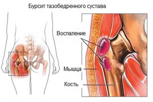 💉 Trochantericus Bursitis: okai, kezelése és gyakorlatok - Az orvosát