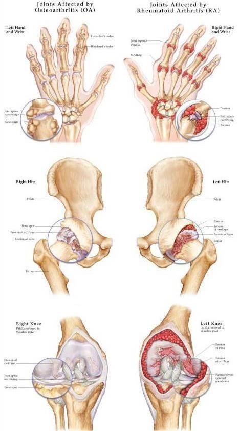 krónikus izom- és ízületi fájdalom)