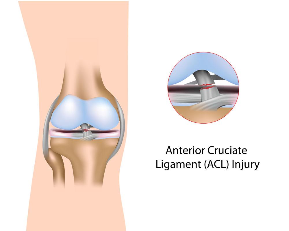 a vállízület szinovitisz hogyan kezeljük a vállízület akut artrózisát