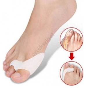 fájdalom a nagy lábujj ízületének gyulladása)